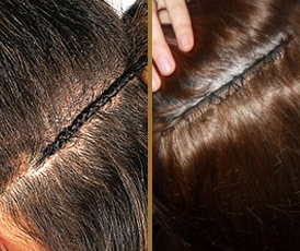 Extensions they will damage hair over time if not cared for properly pmusecretfo Images